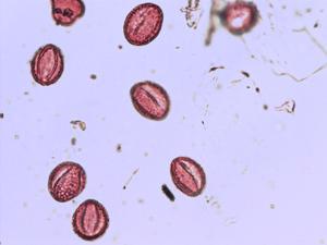 Pollen from the plant Species Salix reticulata.