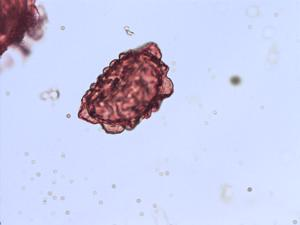 Pollen from the plant Species Dryopteris filix-mas.