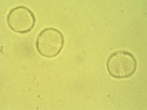 Pollen from the plant Species Macaranga barteri.