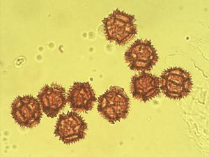 Pollen from the plant Genus Sonchus.