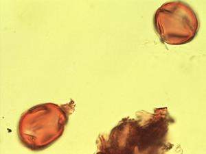 Pollen from the plant Genus Aganope.
