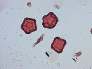 Pollen from the plant Genus Alnus.