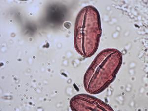 Pollen from the plant Species Astrantia major.
