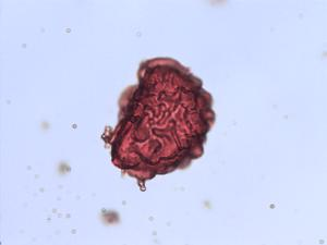 Pollen from the plant Species Dryopteris pseudomas.