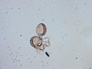 Pollen from the plant Genus Arisaema.