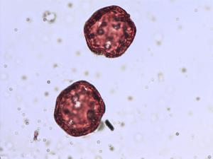 Pollen from the plant Species Cerastium cerastoides.