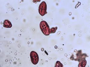 Pollen from the plant Species Apium nodiflorum.