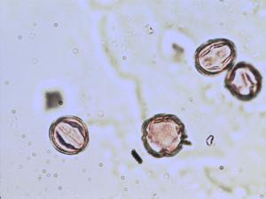 Pollen from the plant Genus Cercis.