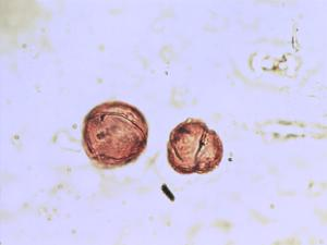 Pollen from the plant Genus Centaurium.