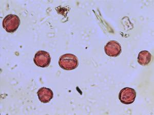 Pollen from the plant Species Reseda luteola.