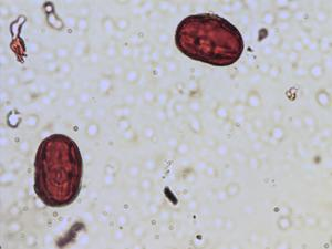 Pollen from the plant Species Ononis spinosa.