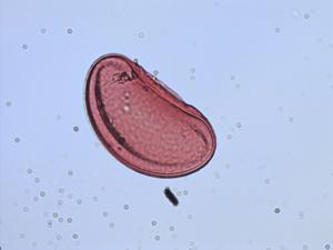 Pollen from the plant Species Campyloneurum angustifolium.