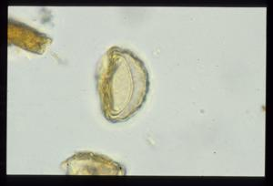 Pollen from the plant Genus Cephaloceraton.
