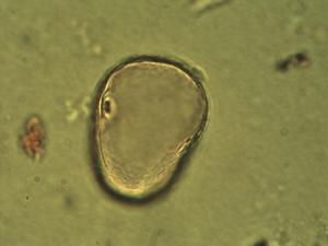 Pollen from the plant Genus Secale.