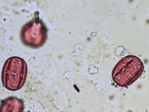 Pollen from the plant Genus Colutea.