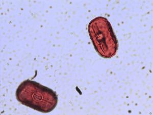 Pollen from the plant Species Vicia orobus.