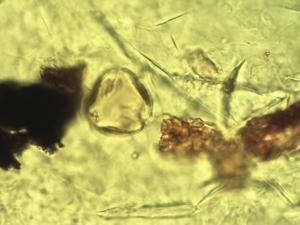 Pollen from the plant Genus Psorospermum.