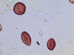 Pollen from the plant Species Saxifraga spathularis.