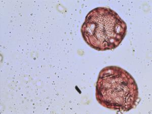 Pollen from the plant Genus Spartium.