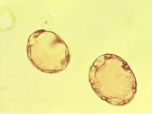 Pollen from the plant Species Nothofagus dombeyi.