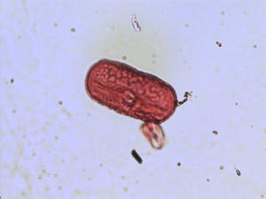 Pollen from the plant Species Vicia faba.