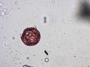 Pollen from the plant Genus Cerastium.