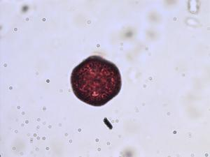 Pollen from the plant Species Stellaria neglecta.
