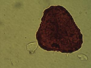 Pollen from the plant Genus Dennstaedtia.