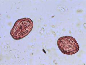 Pollen from the plant Genus Agrimonia.