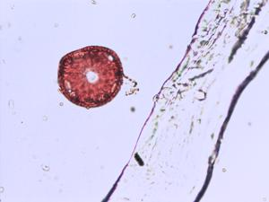 Pollen from the plant Species Stellaria graminea.