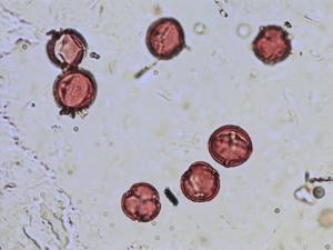 Pollen from the plant Species Filipendula vulgaris.