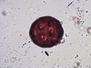 Pollen from the plant Species Cerastium arcticum.