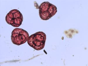 Pollen from the plant Genus Chamaedaphne.