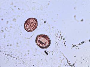 Pollen from the plant Species Lysimachia vulgaris.