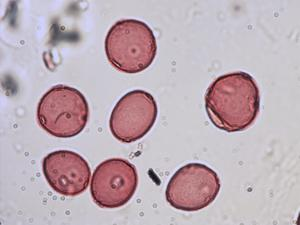 Pollen from the plant Genus Morus.