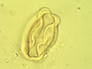 Pollen from the plant Genus Leptaulus.