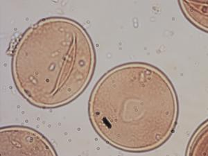 Pollen from the plant Genus Carya.