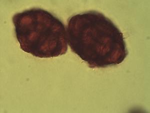 Pollen from the plant Species Acacia amythethophylla.