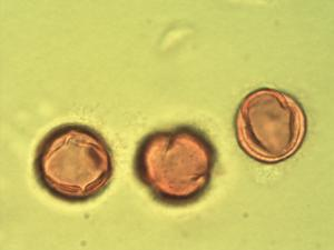 Pollen from the plant Genus Euclea.