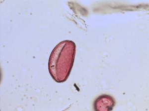 Pollen from the plant Genus Narcissus.