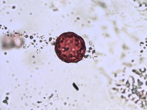 Pollen from the plant Genus Honckenya.