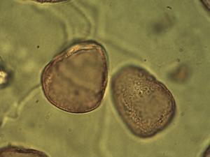 Pollen from the plant Genus Trichophorum.