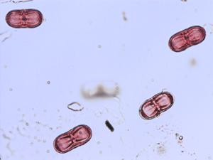 Pollen from the plant Genus Conium.