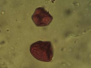 Pollen from the plant Genus Scirpoides.