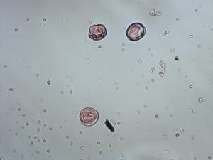 Pollen from the plant Genus Leandra.