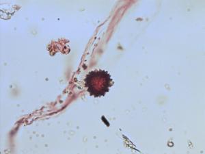Pollen from the plant Genus Pseudognaphalium.