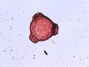 Pollen from the plant Genus Circaea.