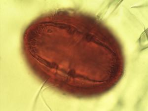 Pollen from the plant Genus Mutisia.