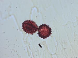 Pollen from the plant Genus Aster.