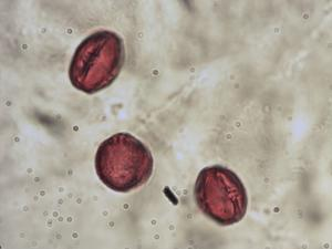 Pollen from the plant Genus Ruta.